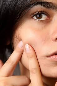 impurità viso